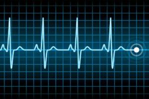 Death - Electrocardiogram